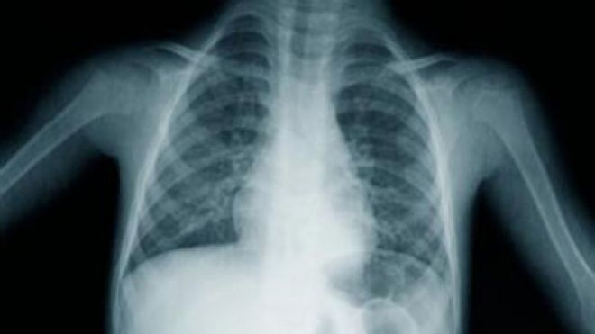 640_lung_xray